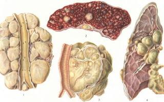 Как проявляется лимфогранулематоз у взрослых и детей