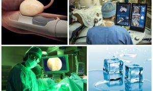 Выбор операции при аденоме простаты