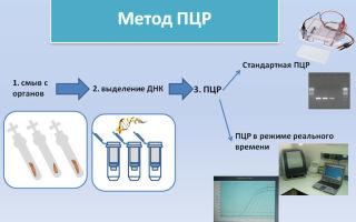 Когда и как проводится анализ на уреаплазму методом ПЦР?