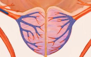 Проведение эмболизации аденомы простаты: показания, противопоказания и методика