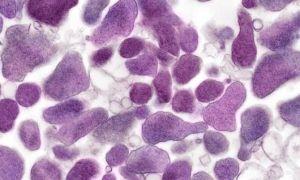 Уреаплазма spp — что надо знать об этом микроорганизме?