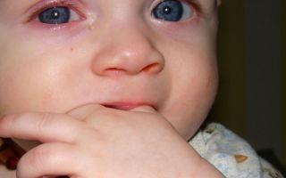 Хламидиоз у детей — что необходимо делать?