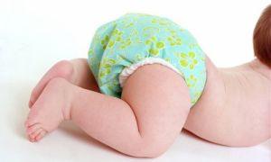 Почему появляется Атрезия ануса у новорожденных?