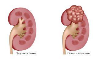 Что делать при диагнозе «Ангиомиолипома правой почки»?