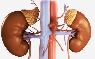 Причины, симптомы и лечение альдостеромы