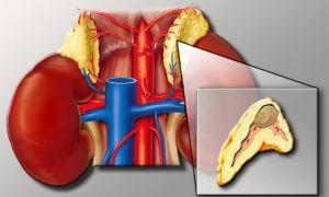 Феохромобластома — что это за болезнь?