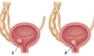 Уретероцеле — виды порока и тактика лечения