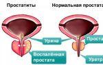 Какие симптомы простатита у мужчин возникают на разных стадиях заболевания?