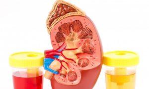 Почему появляется кровь в моче при аденоме простаты?