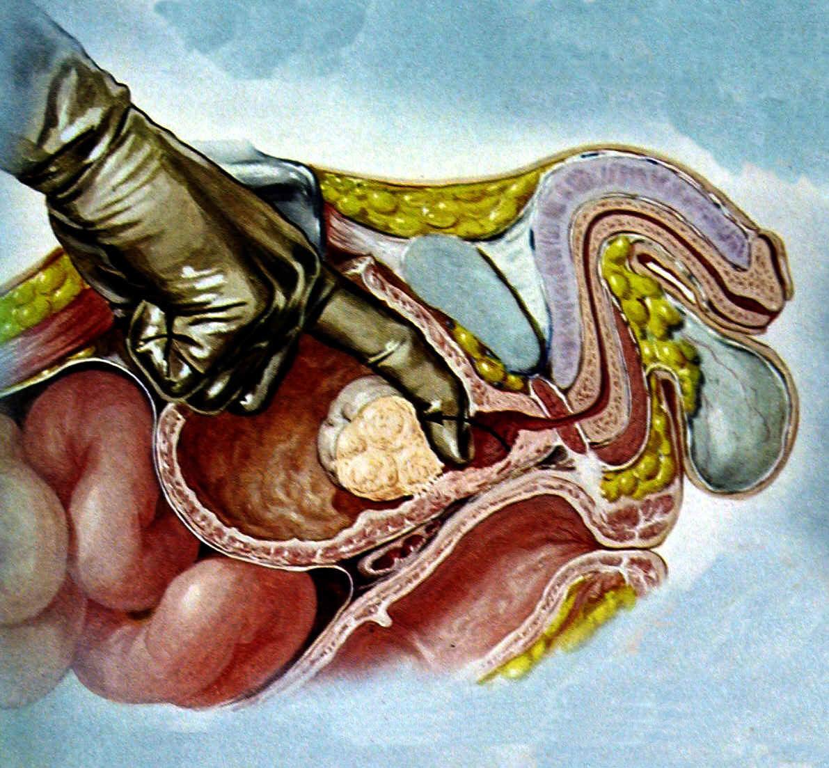 Чем грозит простатита прибор для лечения простатита эсрв 01