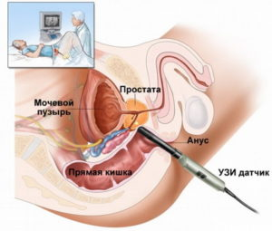 Как осуществляется биопсия простаты?