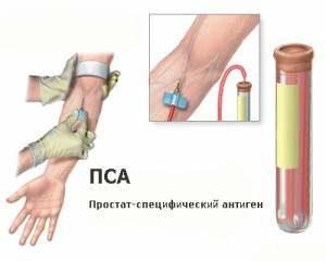 Как проходит анализ крови на ПСА?