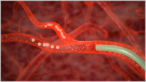 Эмболизация артерий простаты - правила проведения и осложнения