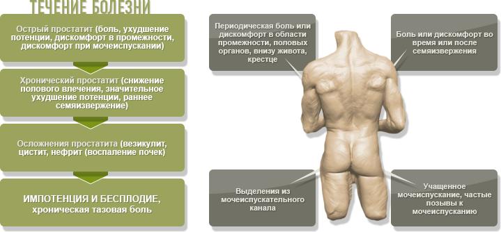 Лечение аденомы простаты препаратами