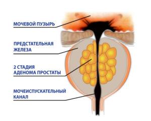 Причины и лечение простаты у мужчин