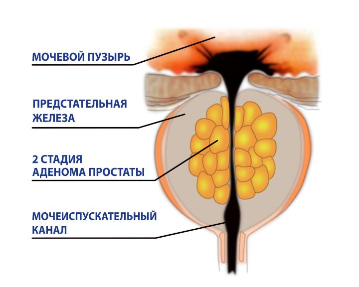 Кровь в моче и проблемы мочеиспускания при аденоме простаты