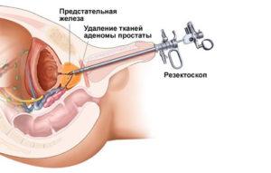 Схема удаления тканей аденомы простаты
