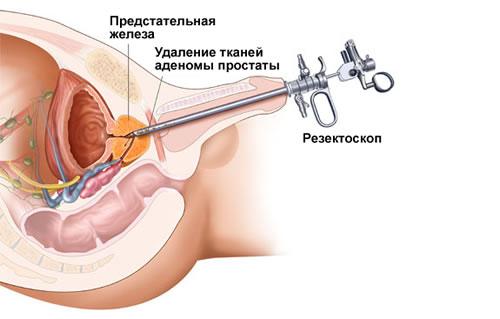 как лечится начальная стадия простатита