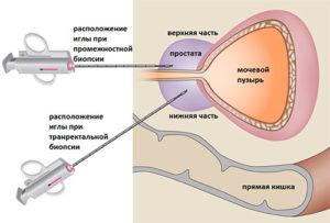 Трансректальная биопсия простаты