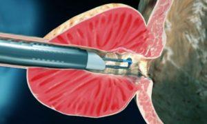 Удаление аденомы простаты с помощью лазера