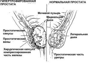 Вид нормальной и гипертрофированной простаты
