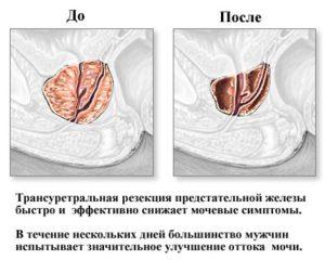 после ТУР аденомы - какой должна быть предстательная железа?