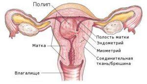 Железистые полипы эндометрия