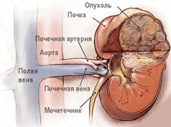 Липома почки - причины, симптомы, лечение, профилактика