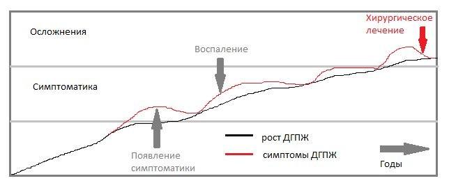 Проявление аденомы простаты - график