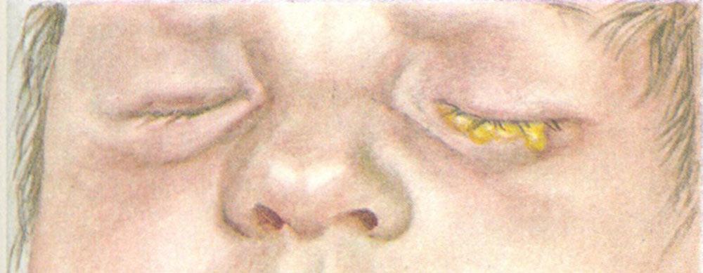 Что такое гонорея (триппер) - симптомы, причины, лечение у взрослых и детей