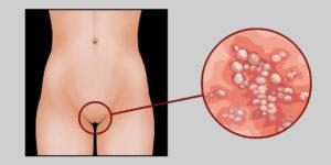 Симтомы сифилиса у женщин