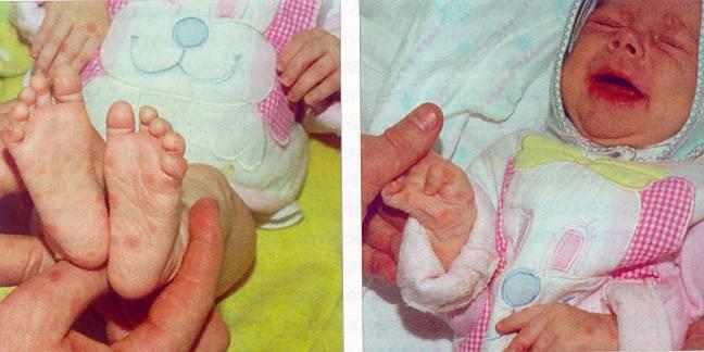сифилис у новорожденного