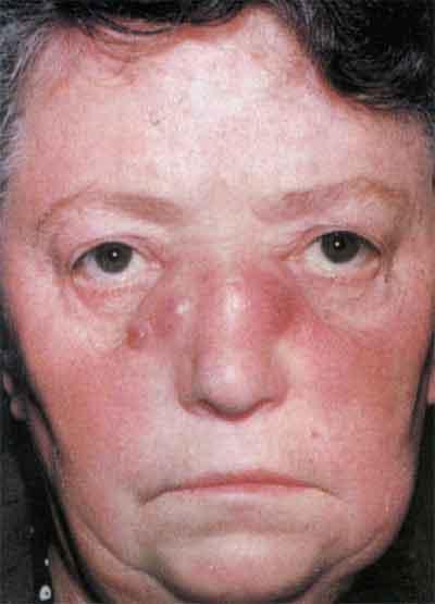 сифилитический нос фото