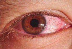 Хламидии в глазах