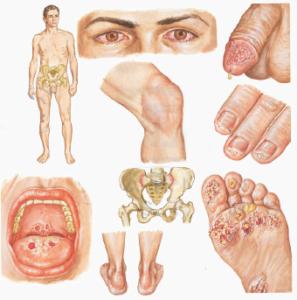 Особенности хламидиоза у мужчин