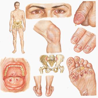 ревматические и обменные заболевания суставов