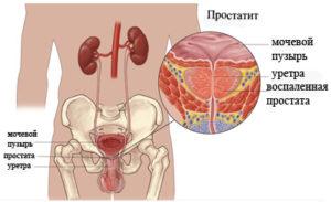 Простатит - последствие хламидиоза