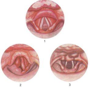 Стадии сифилиса горла