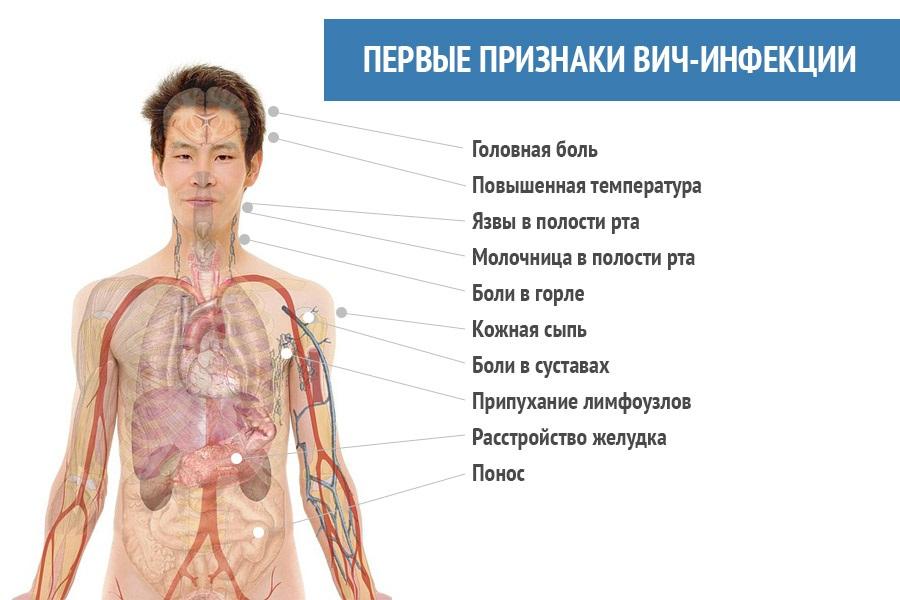 вич болезнь фото