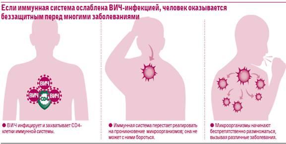 иммунитет при ВИЧ 2