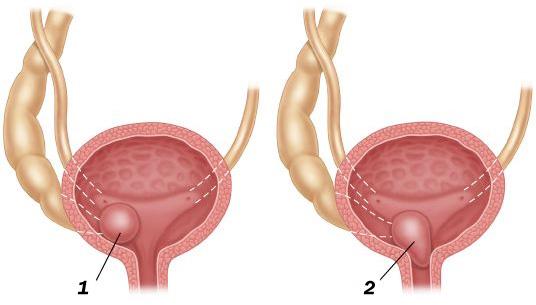 Уретероцеле мочевого пузыря у женщин и детей