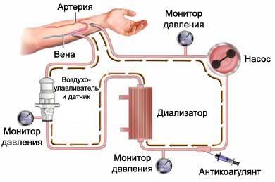 Гемодиализ - как проводится, состояние после диализа и осложнения