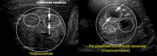 Пиелоэктозия