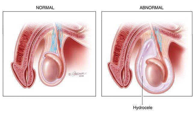 Операция при водянке яичка: операция Росса и Бергмана, Винкельмана при гидроцеле, отзывы