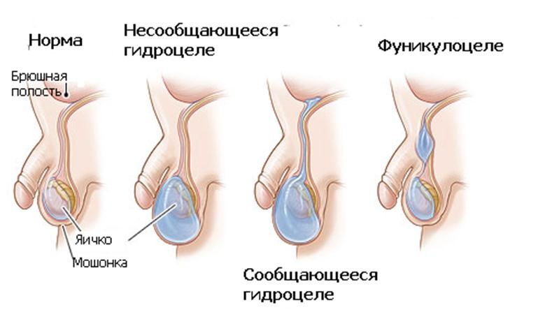 Водянка яичка у мужчин и
