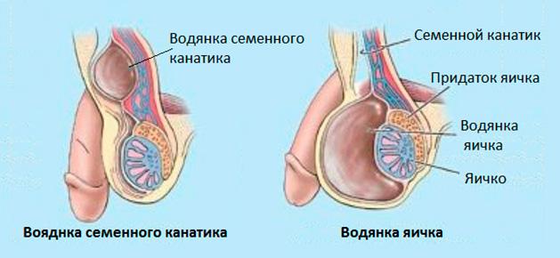 Что такое гидроцеле у мужчин