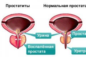Народные средства лечения при простатите у мужчин