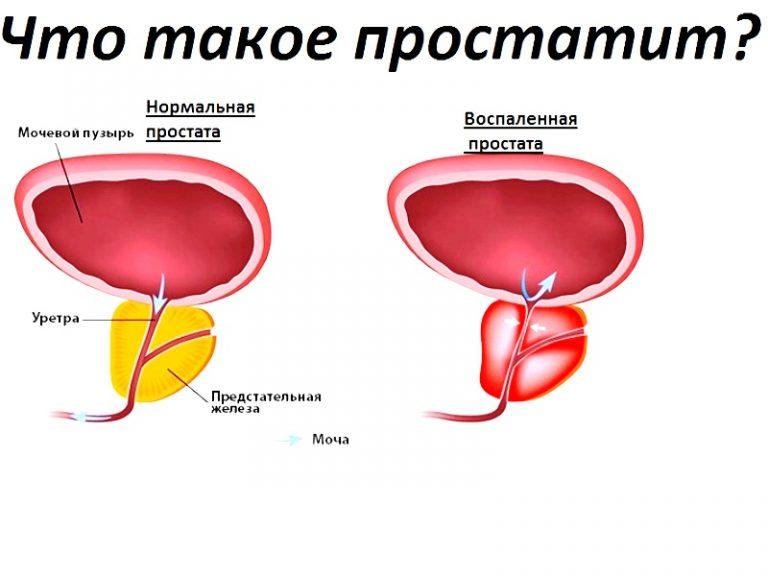 лечение простатита казань клиника