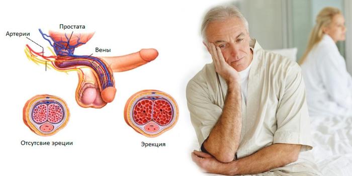 Влияние аденомы простаты на потенцию мужчины