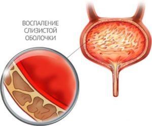 Лечение цистита и простаты — Советы медиков